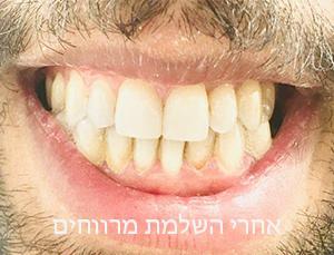 """אלרי סגרית מרווח שיניים מקצועית - ד""""ר ענבל שפיים הבר"""